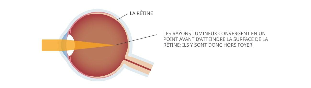 Correction de la myopie avec le laser   LASIK MD 632805e25e18