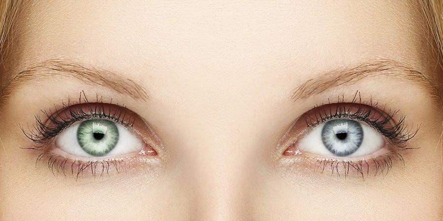LMDBlog_Heterochromia-LO